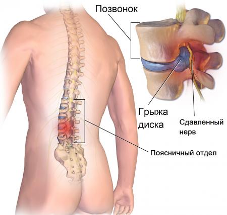вот межпозвонковый остеохондроз поясничного отдела позвоночника прочитал понравилось